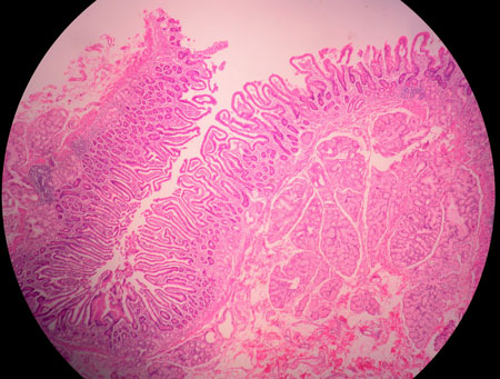 histology of human duodenum image